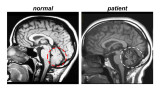 A Magnetic Resonance Imaging (MRI) scan showing a healthy control (left) and a patient with cerebellar ataxia (right). The ataxia patient's MRI shows cerebellar atrophy.